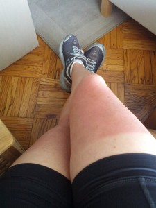 Sunburned legs